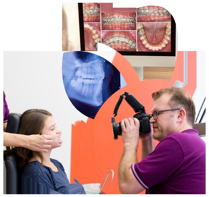 Collage aus Kieferaufnahmen, Röntgenaufnahme, Patientin bei der digitalen Dokumentation