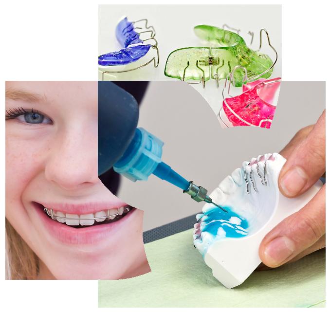 Collage aus Zahnspangen, Laborarbeiten, lächelnde Patientin mit Zahnspange