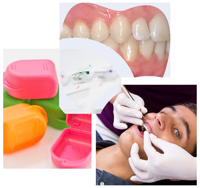 Collage aus Zahnspangendosen, Bracket-Untersuchung und Gebiss